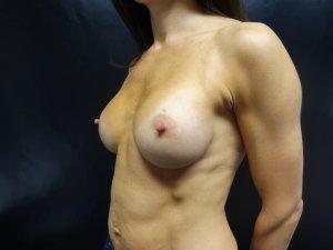 Manhattan Breast Augmentation after 9